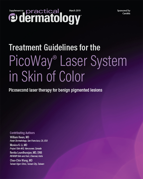 Treatment Guidleins for the PicoWay® Laser System in Skin of Color Thumb